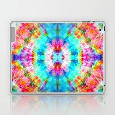 Rainbow Sunburst Laptop & iPad Skin
