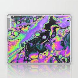 AMNESIA Laptop & iPad Skin