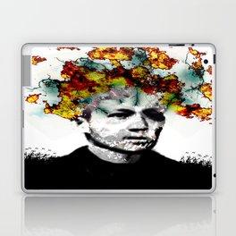Migraine Laptop & iPad Skin
