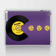 You Give Me Fever Laptop & iPad Skin