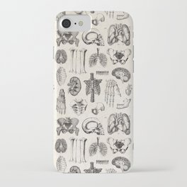 Human Anatomy iPhone Case