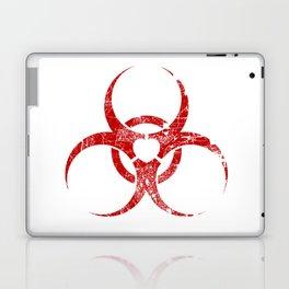 Toxic Love Laptop & iPad Skin