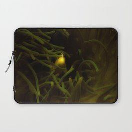 Hiding in the shadows but seen in the light Laptop Sleeve