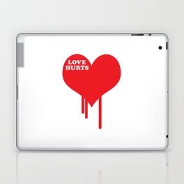 Love Hurts Quote Laptop & iPad Skin