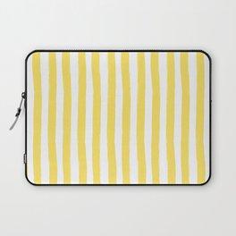 Yellow and White Cabana Stripes Palm Beach Preppy Laptop Sleeve