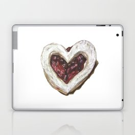 Holiday Love Cookie Laptop & iPad Skin