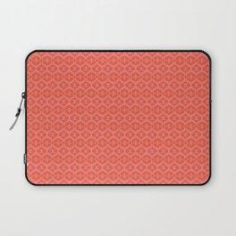 Love letter lace Laptop Sleeve