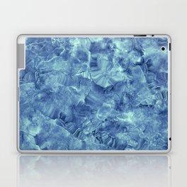 Blue onyx marble Laptop & iPad Skin