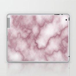 Pink Marbel Laptop & iPad Skin