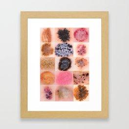 dermoscopy Framed Art Print