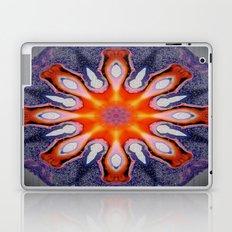 GemStone Laptop & iPad Skin