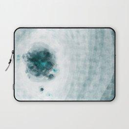 A dream - abstract digital art Laptop Sleeve