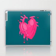 Simple Heart Laptop & iPad Skin