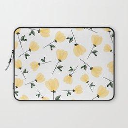 Yellow Tulips Laptop Sleeve