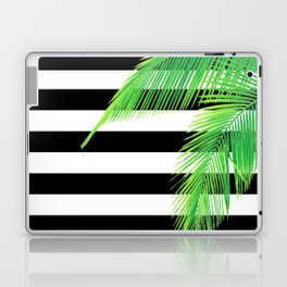 Simply Tropical Stripes Laptop & iPad Skin