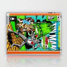 the Tenacious Tinman (COVER VARIANT) Laptop & iPad Skin