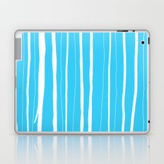 Vertical Living Electric Laptop & iPad Skin