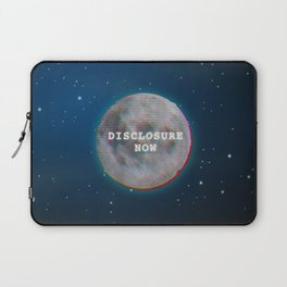 Disclosure Now Glitch Moon Laptop Sleeve
