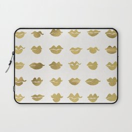 Kiss Collection – Gold Ink Laptop Sleeve