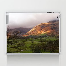 Morning Over Langdale Laptop & iPad Skin