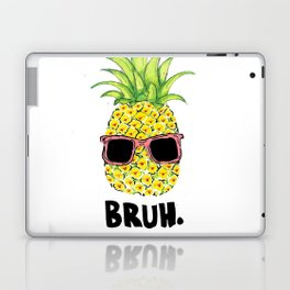 Bruh Laptop & iPad Skin