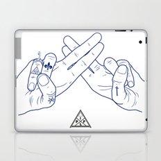 Make My Hands Famous - Part II Laptop & iPad Skin