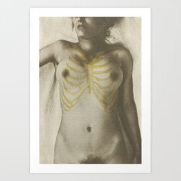 Vintage Anatomical Photo, 1908 - Female Art Print