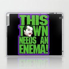 This Town Needs an Enema! Laptop & iPad Skin
