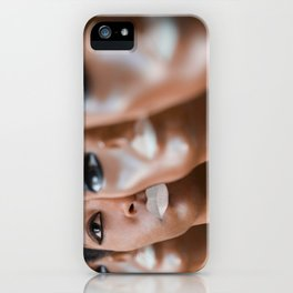 Assimilate iPhone Case
