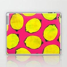 Lemon pattern Laptop & iPad Skin