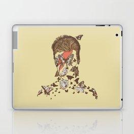 FACES OF GLAM ROCK Laptop & iPad Skin