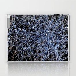 No Mind | Only Love | NLP Laptop & iPad Skin