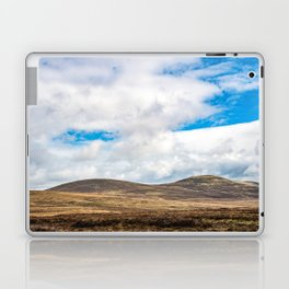 Rolling Irish Hills Laptop & iPad Skin