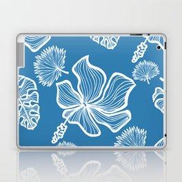 Blue Tropicana Laptop & iPad Skin