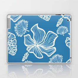 Blue Tropicana Laptop & iPad Skin