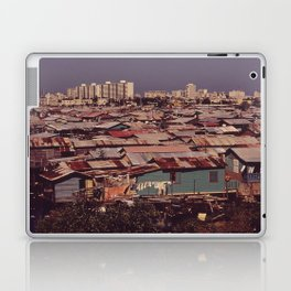 'MODERN BUILDINGS TOWER OVER THE SHANTIES CROWDED ALONG THE MARTIN PENA CANAL' Laptop & iPad Skin