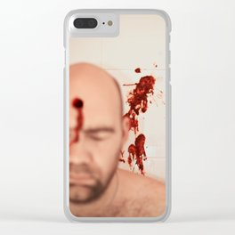 SHOT Clear iPhone Case
