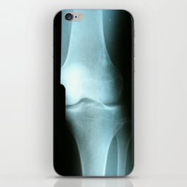 Knee iPhone Skin