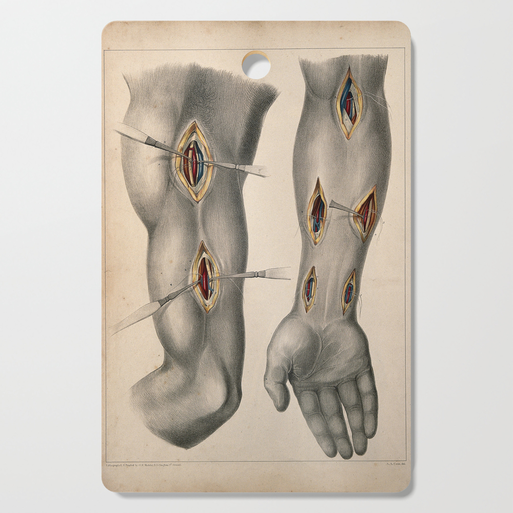 Surgery Of The Arteries Of The Arm Two Figures Showing Incisions In The Upper And Lower Arm, With Su Cutting Board by shopability