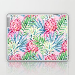 Pineapple & watercolor leaves Laptop & iPad Skin