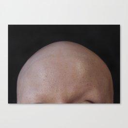 Alopecia Canvas Print