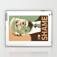 Not So Much with the Hope Now Laptop & iPad Skin
