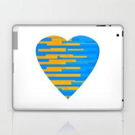 Glitching Hearts — Blue and Orange Laptop & iPad Skin