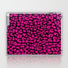 Pink Black Leopard Laptop & iPad Skin