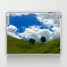 Two Trees Laptop & iPad Skin