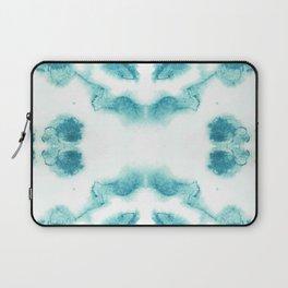 Blue & White Chalcedony Laptop Sleeve