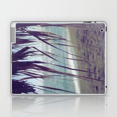 Perfect View II Laptop & iPad Skin
