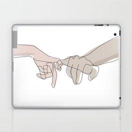 Pinky Shades Laptop & iPad Skin