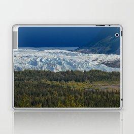 Matanuska Glacier, Alaska - Summer Laptop & iPad Skin