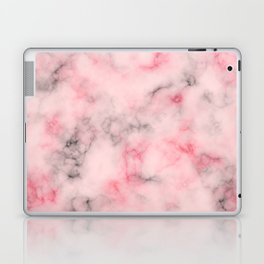 Pink and gray marble Laptop & iPad Skin